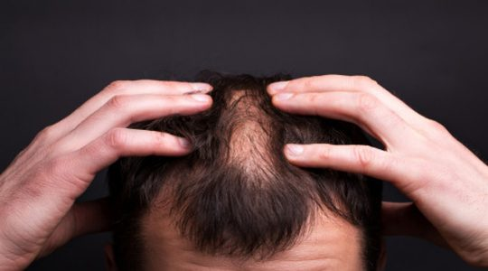 5 things you must do after Hair Transplant Treatment