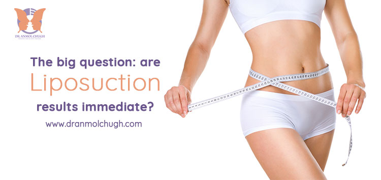 The big question: Are liposuction results immediate?