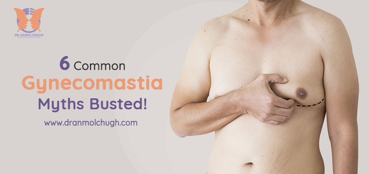 6 Common Gynecomastia Myths Busted