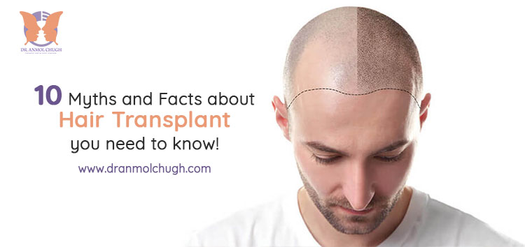 10 Myths and Facts about Hair Transplant you need to know!