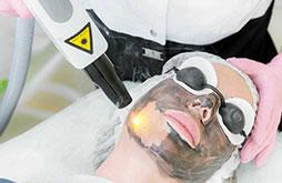 Carbon Peel Treatment