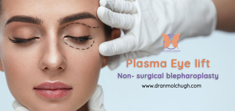 Plasma eye lift/Non- surgical blepharoplasty