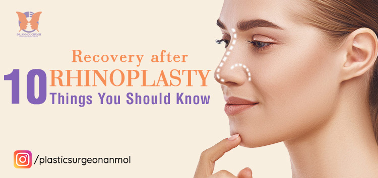 Recovery after Rhinoplasty: 10 things you should to know