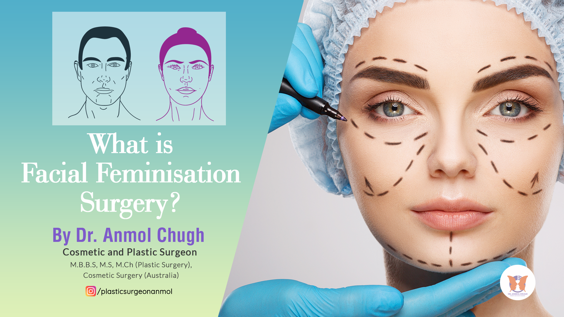 Facial Feminisation Surgery: Things You Should Know