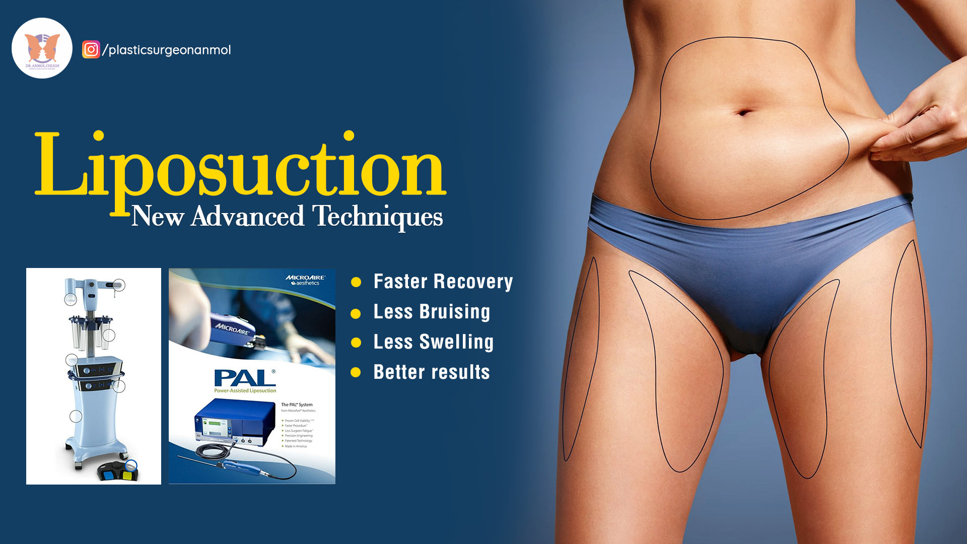 What Are The New advanced Technologies Involved In Liposuction Treatment?