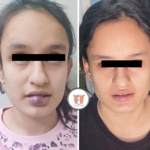 Case Studies – Facial plastic surgery – Before and After