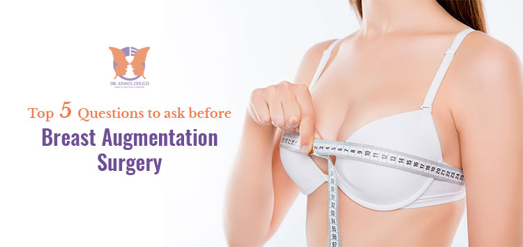 5-questions-to-ask-before-breast-augmentation-surgery