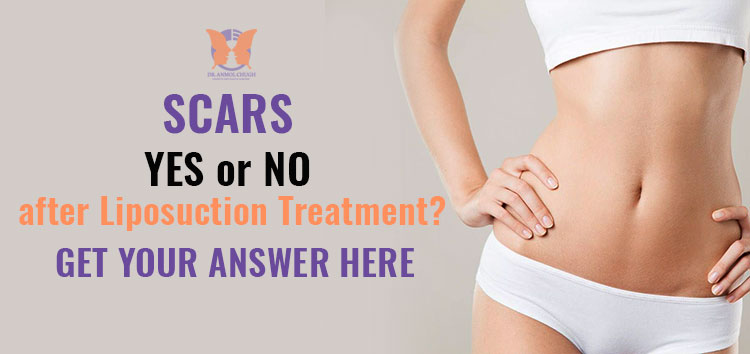 Will I have scars after Liposuction Treatment